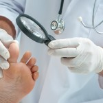 caring for diabetic feet
